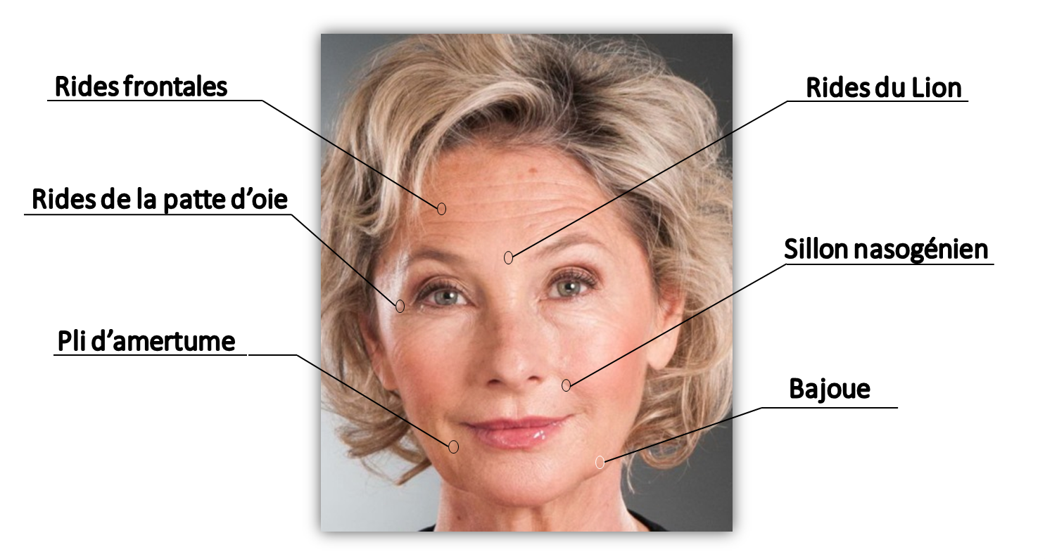 Cicatrices abdominoplastie